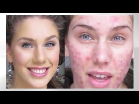 Acne Foundation Routine! Pimples, Scars, Cystic Acne, Blackheads & Oil! | Cassandra Bankson