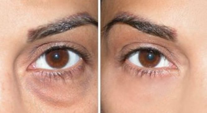 How to Cover Dark Circles + Under Eye Bags